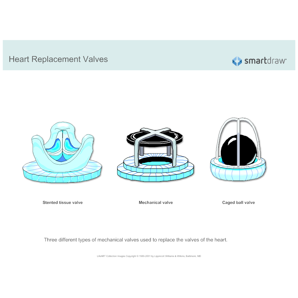 Example Image: Heart Replacement Valves