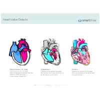 Heart Valve Defects