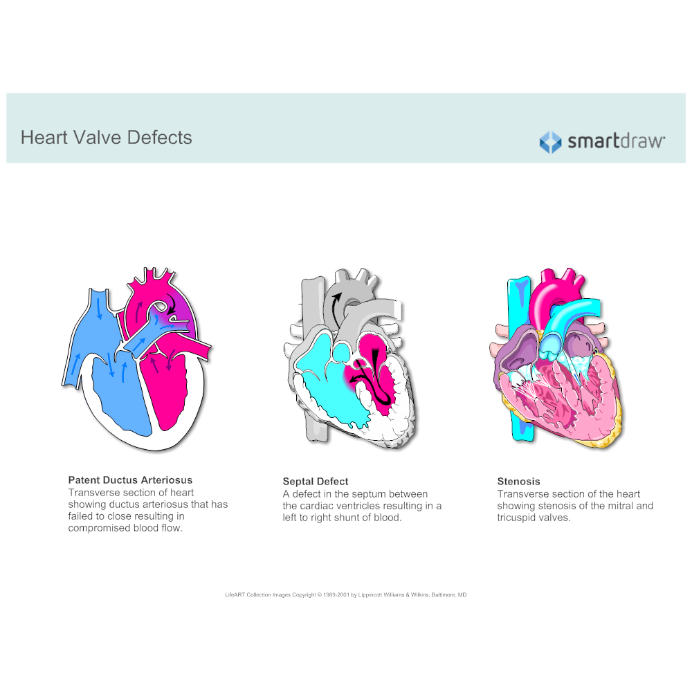 Example Image: Heart Valve Defects