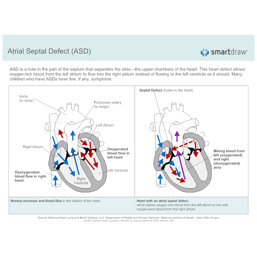 Example Image: Atrial Septal Defect