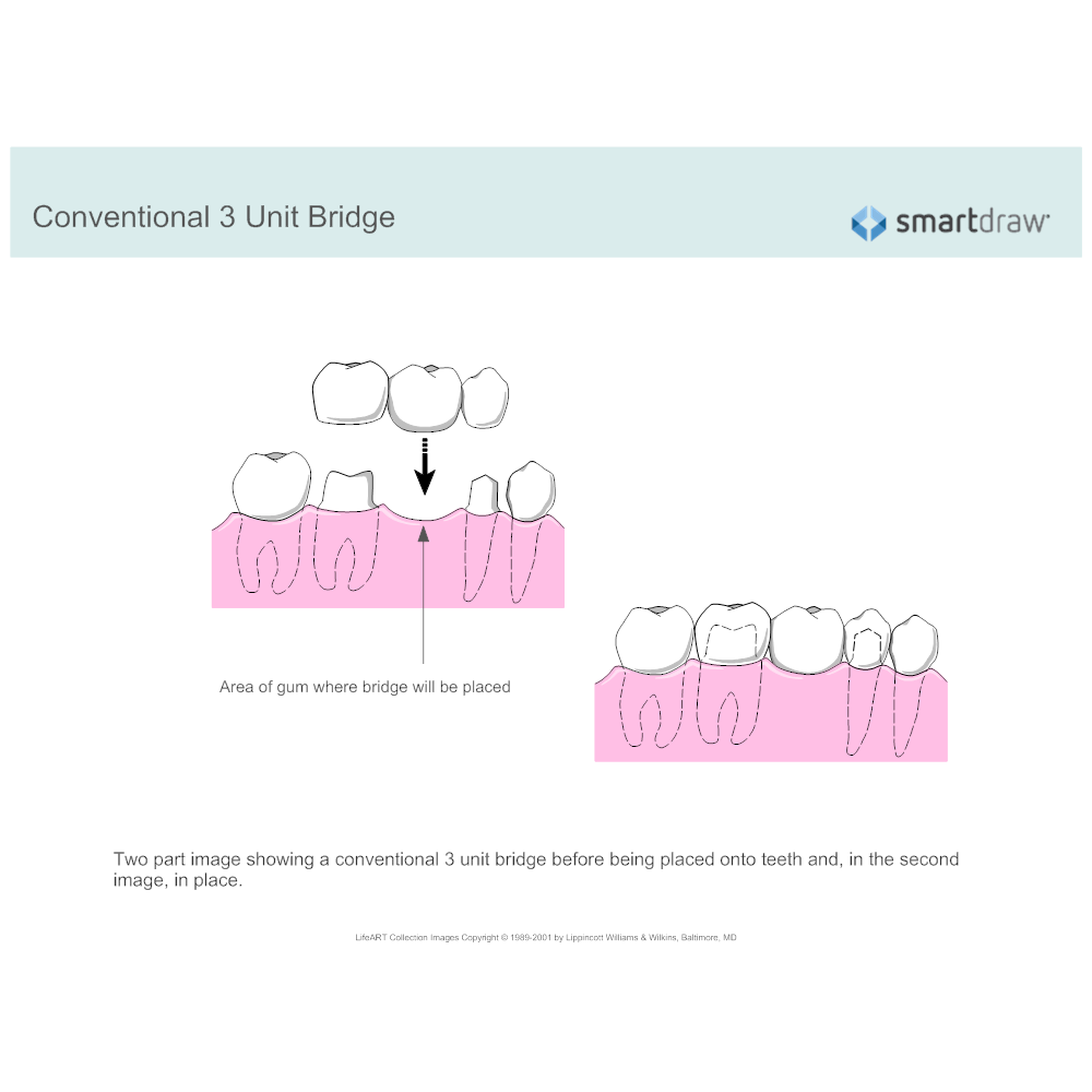 Example Image: Conventional 3 Unit Bridge