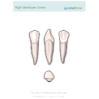 Right Mandibular Canine