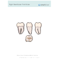 Right Mandibular First Molar