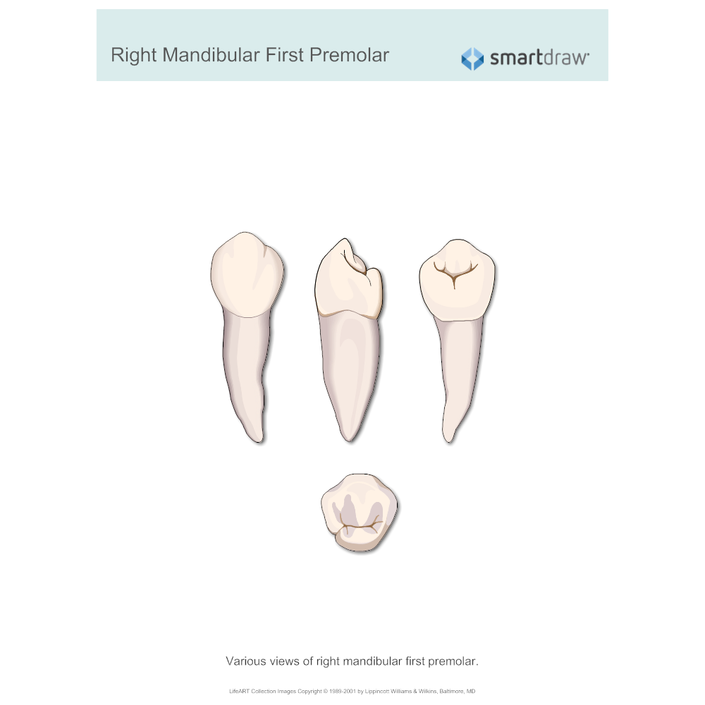 Example Image: Right Mandibular First Premolar