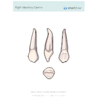 Right Maxillary Canine