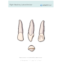 Right Maxillary Lateral Incisor