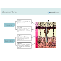 Degrees of Burns