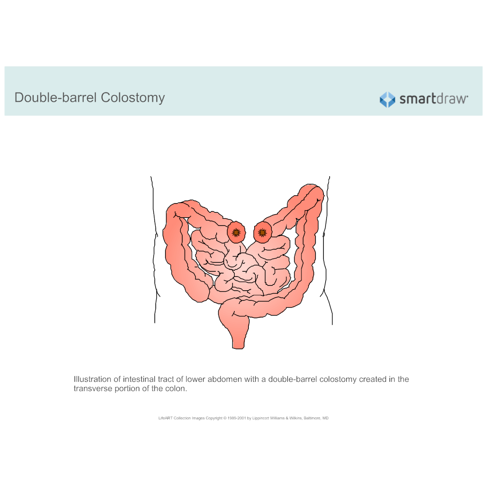Example Image: Colostomy - Double-barrel