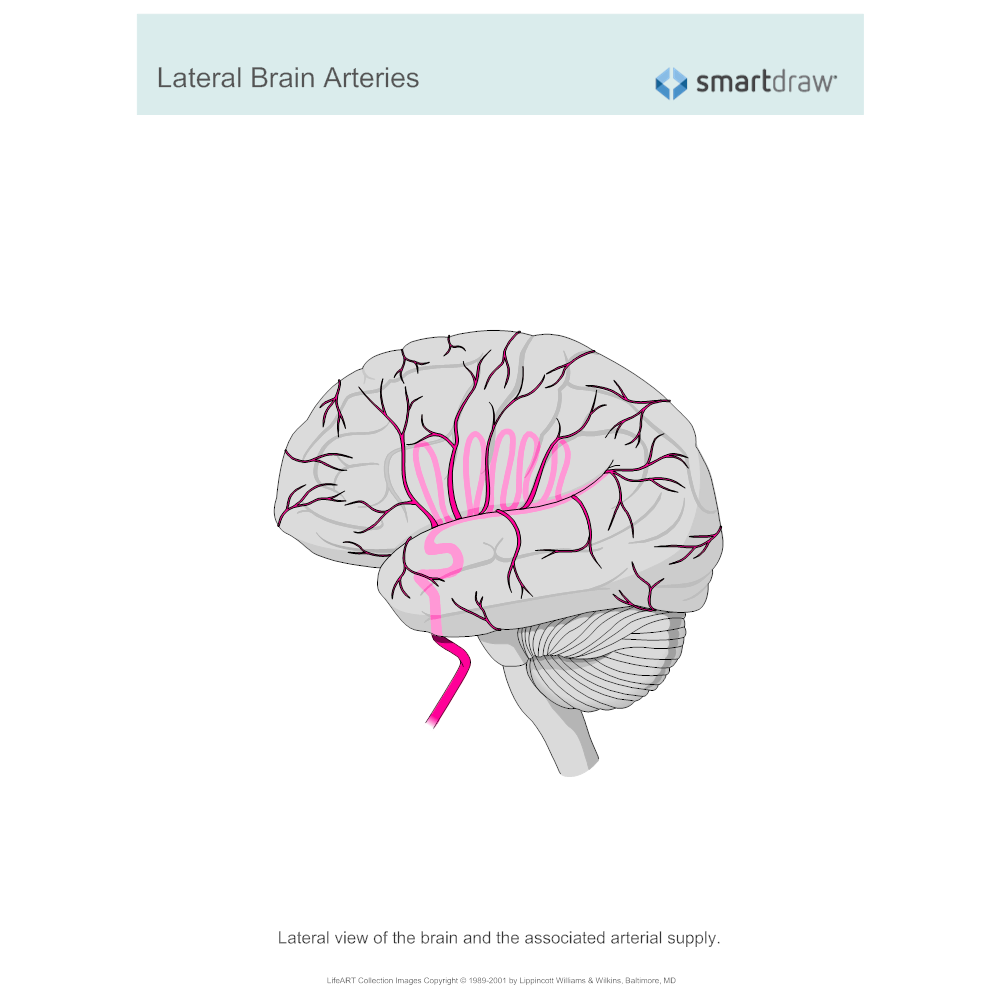 Example Image: Lateral Brain Arteries