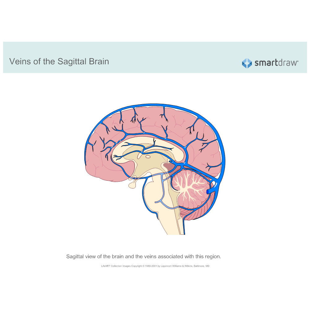 Example Image: Veins of the Sagittal Brain