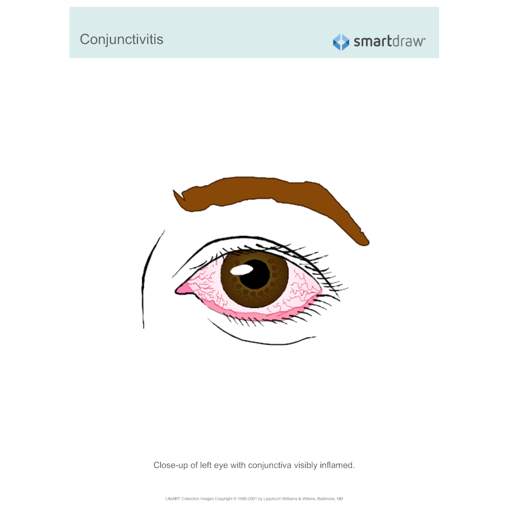 Example Image: Conjunctivitis