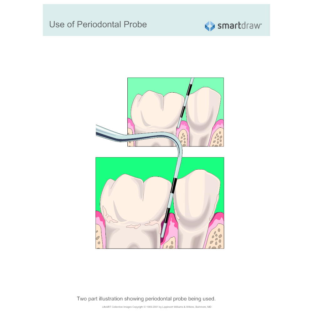 Example Image: Use of Periodontal Probe