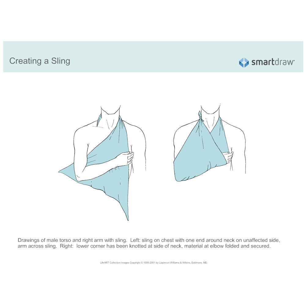 Example Image: Creating a Sling