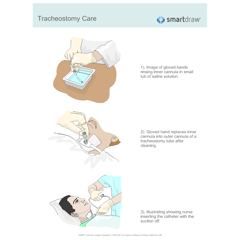 tracheostomy-care.png?bn=1510011080